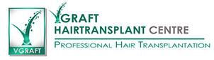 V-Graft Hair Transplant Centre Chennai
